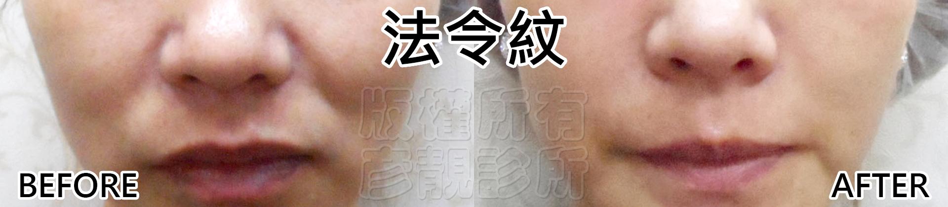 桃園-台北-醫美-推薦-墊下巴、嘴邊肉、瘦小臉-彥靚診所-法令紋-消除-木偶紋-嘴邊肉-回春-長效型玻尿酸-黃政達醫師-新竹-高雄003