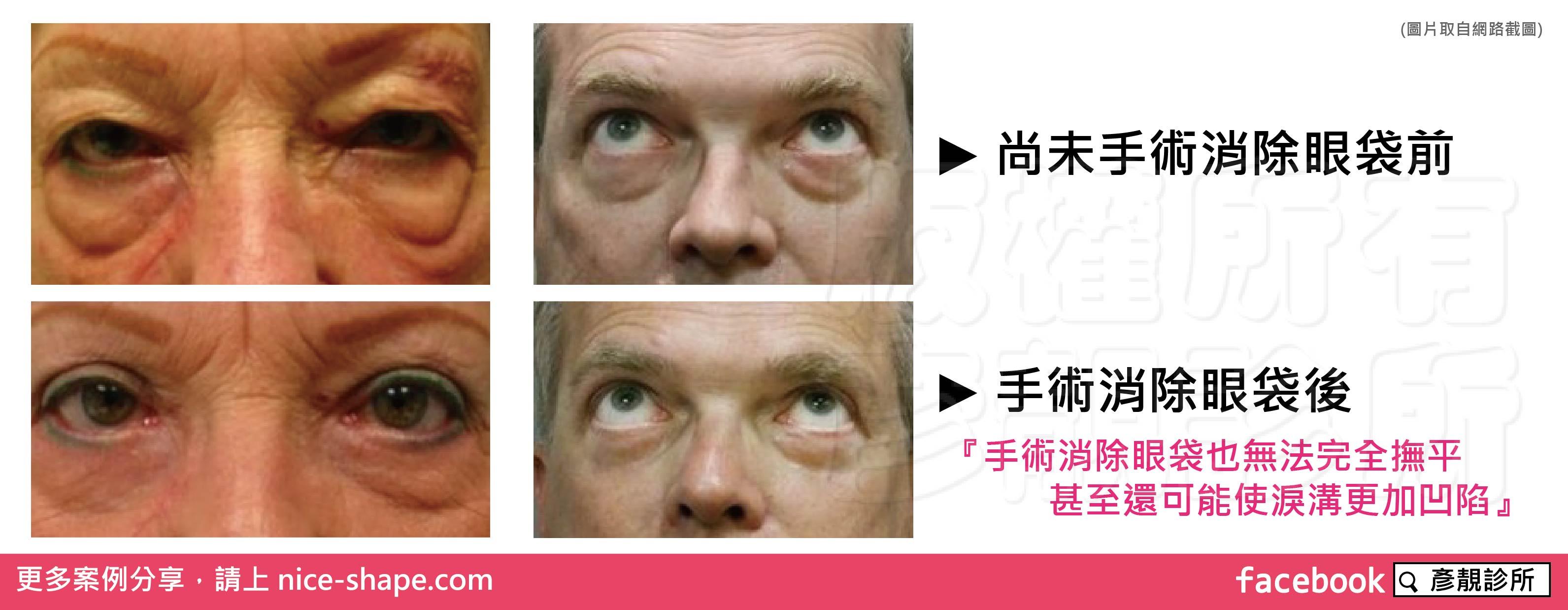 桃園-台北-眼袋-黑眼圈-消除-手術-桃園-玻尿酸-眼袋型淚溝-淚溝型黑眼圈-淚溝-黃政達醫師-推薦-新竹-高雄0001_00002
