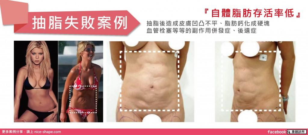 桃園-台北-自體脂肪-脂肪移植-隆乳-抽脂-失敗-玻尿酸-拯救淚溝-玻尿酸失敗-整形失敗-失敗補救-微整形-自體脂肪填補-硬化-後遺症-推薦-價格-新竹-16051203