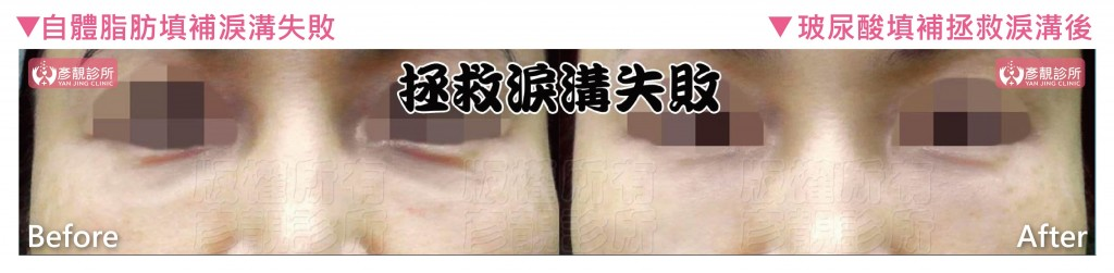 桃園-台北-自體脂肪-脂肪移植-隆乳-抽脂-失敗-玻尿酸-拯救淚溝-玻尿酸失敗-整形失敗-失敗補救-微整形-自體脂肪填補-硬化-後遺症-推薦-價格-新竹-16051207