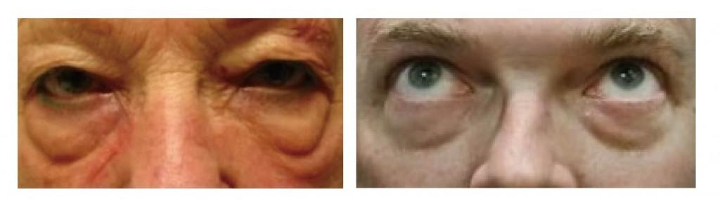 新竹-眼袋-黑眼圈-桃園-台北-玻尿酸-眼袋型淚溝-淚溝型黑眼圈-淚溝-消除改善-價格費用-推薦-16061801-01