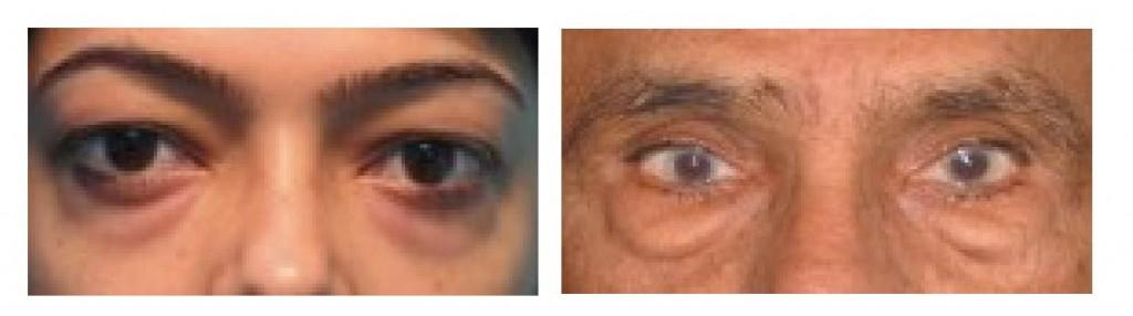 新竹-眼袋-黑眼圈-桃園-台北-玻尿酸-眼袋型淚溝-淚溝型黑眼圈-淚溝-消除改善-價格費用-推薦-16061801-02-02