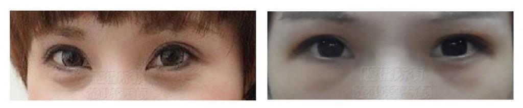 新竹-眼袋-黑眼圈-桃園-台北-玻尿酸-眼袋型淚溝-淚溝型黑眼圈-淚溝-消除改善-價格費用-推薦-16061801-04