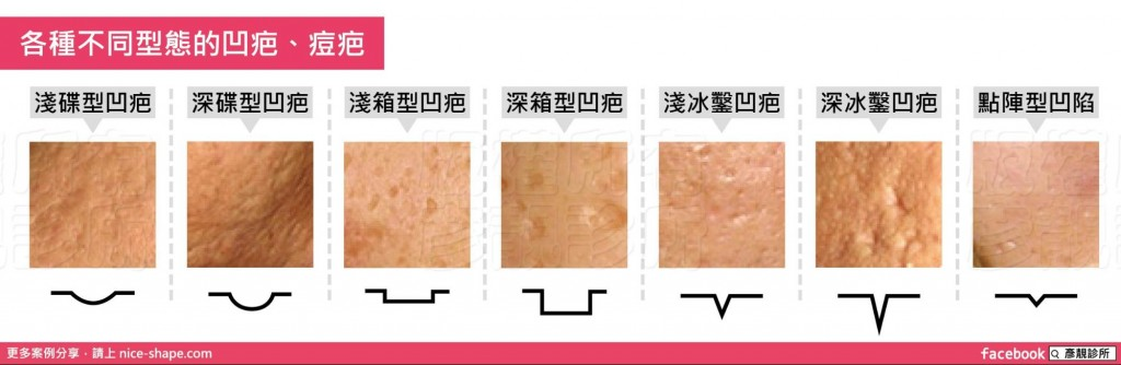 桃園-台北-飛針雷射-飛梭雷射-改善凹疤-改善痘疤-毛孔粗大-微針-滾針-膠原蛋白-增生-軟化角質-煥膚-光療-新竹1662101