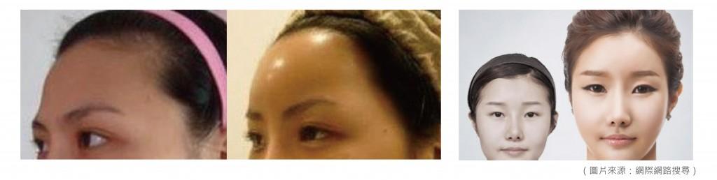 桃園-台北-藝人-玻尿酸-推薦-注射-淚溝-夫妻宮-豐額-豐頰-眉心-回春-拉提-隆鼻-瑞詩朗-大分子-長效型-微整型-新竹-醫美160816006