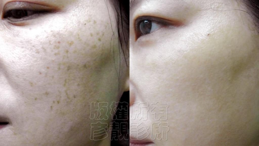 雷射-淨膚-柔膚-美白-除斑-縮毛孔-除皺-銣雅鉻-桃園-台北-推薦-888-1024x576