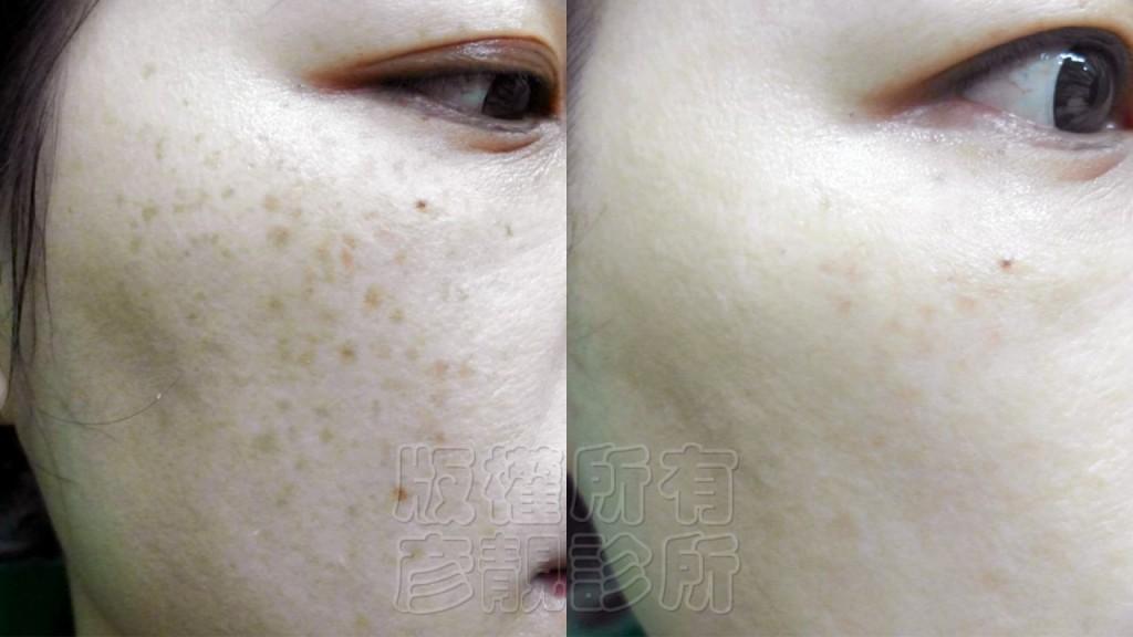 雷射-淨膚-柔膚-美白-除斑-縮毛孔-除皺-銣雅鉻-桃園-台北-推薦-889-1024x576