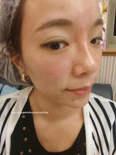 台北-桃園-新竹-推薦-診所-醫美-醫生-玻尿酸-眼袋-黑眼圈-隆鼻-墊下巴-音波拉皮-豐唇-瘦小臉-自體脂肪移植-手術-多汗症-止汗-狐臭-價格費用-消除改善-17041101