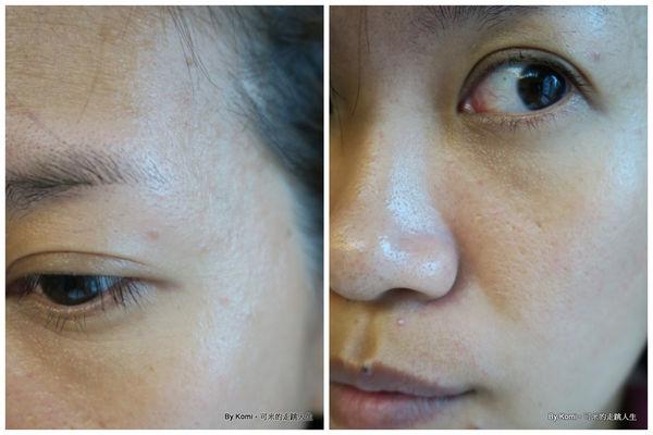 推薦-台北-桃園-新竹-診所-黑眼圈-雷射-除斑-雀斑-凹洞-痘疤-凹疤-自體脂肪移植-隆乳-抽脂-多汗症-狐臭-止汗-醫美-醫生-消除改善-價格費用17041310