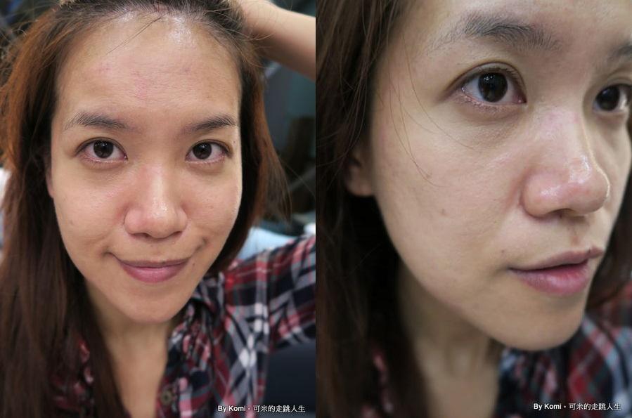 推薦-台北-桃園-新竹-診所-黑眼圈-雷射-除斑-雀斑-凹洞-痘疤-凹疤-自體脂肪移植-隆乳-抽脂-多汗症-狐臭-止汗-醫美-醫生-消除改善-價格費用17041312