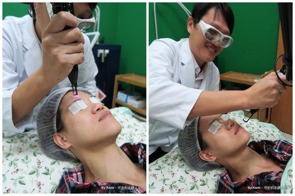 推薦-台北-桃園-新竹-診所-黑眼圈-雷射-除斑-雀斑-凹洞-痘疤-凹疤-自體脂肪移植-隆乳-抽脂-多汗症-狐臭-止汗-醫美-醫生-消除改善-價格費用17041332