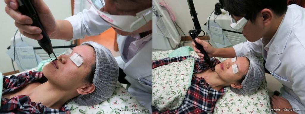推薦-台北-桃園-新竹-診所-黑眼圈-雷射-除斑-雀斑-凹洞-痘疤-凹疤-自體脂肪移植-隆乳-抽脂-多汗症-狐臭-止汗-醫美-醫生-消除改善-價格費用17041340