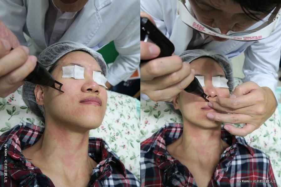 推薦-台北-桃園-新竹-診所-黑眼圈-雷射-除斑-雀斑-凹洞-痘疤-凹疤-自體脂肪移植-隆乳-抽脂-多汗症-狐臭-止汗-醫美-醫生-消除改善-價格費用17041348