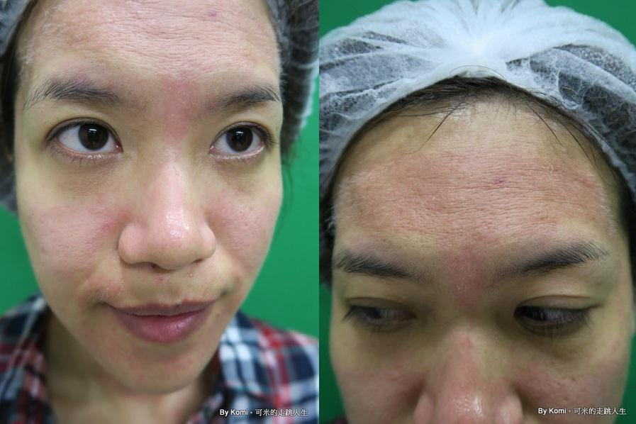 推薦-台北-桃園-新竹-診所-黑眼圈-雷射-除斑-雀斑-凹洞-痘疤-凹疤-自體脂肪移植-隆乳-抽脂-多汗症-狐臭-止汗-醫美-醫生-消除改善-價格費用17041321