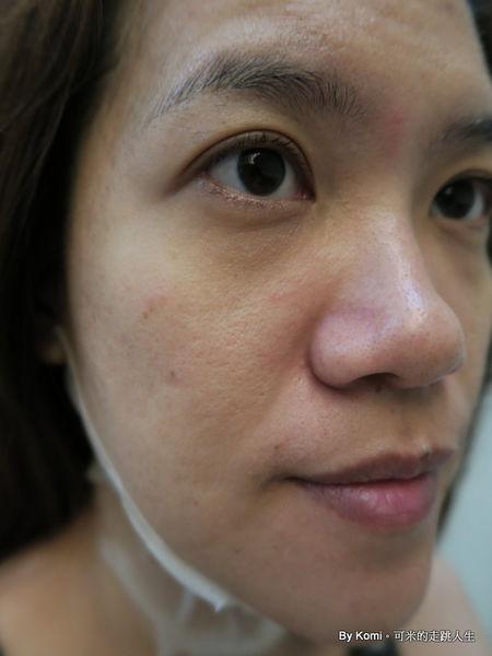推薦-台北-桃園-新竹-診所-黑眼圈-雷射-除斑-雀斑-凹洞-痘疤-凹疤-自體脂肪移植-隆乳-抽脂-多汗症-狐臭-止汗-醫美-醫生-消除改善-價格費用17041327
