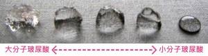 水微晶-瑞絲朗-玻尿酸-晶亮瓷-微晶瓷-洢蓮絲-依戀詩-少女針-複合式微整形-失敗-拯救-推薦-價格費用-消除改善-分享-彥靚-診所-醫生-台北-桃園-新竹-170602006